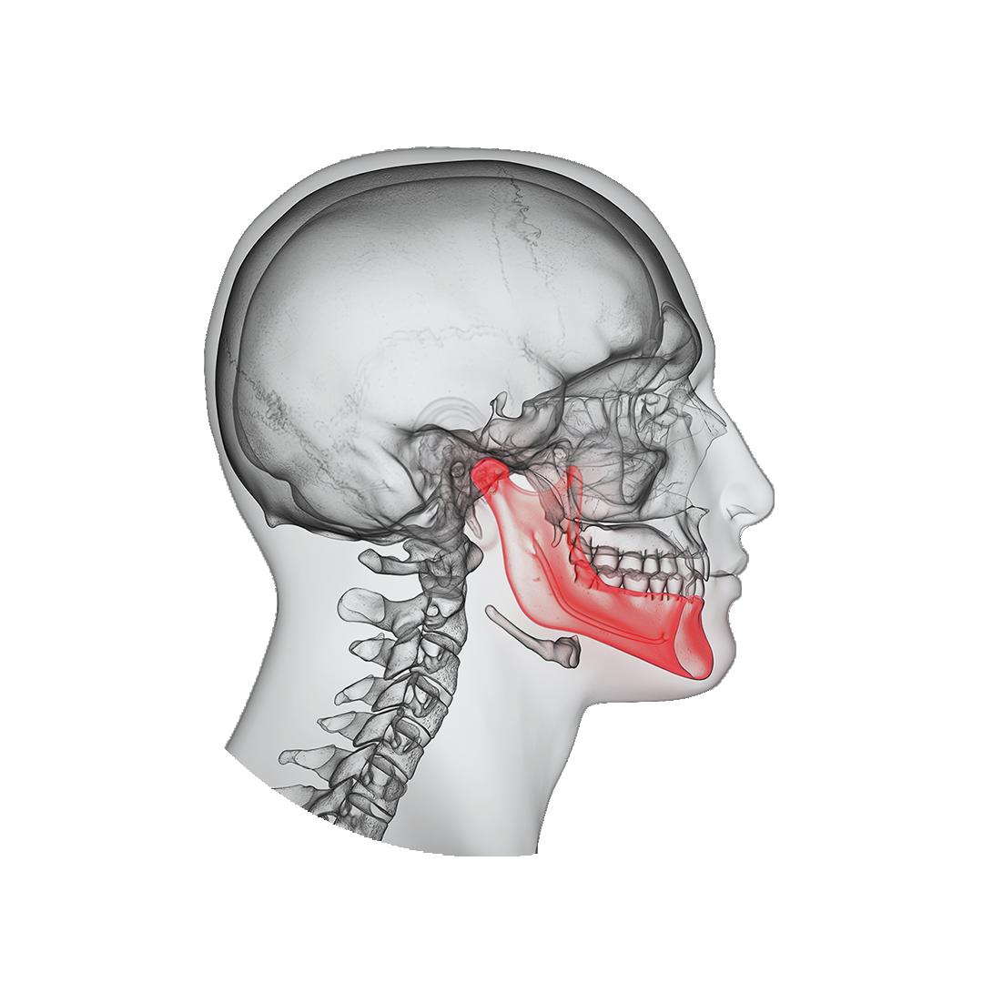 apatinio žandikaulio sąnarių gydymas kaip artrito gydymui artrozė