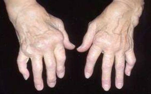artritas mažų sąnarių rankas rankas osteochondrozė sustava