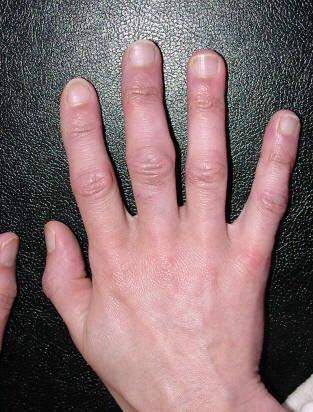 artritas mažų sąnarių rankas rankas nykščio skausmas