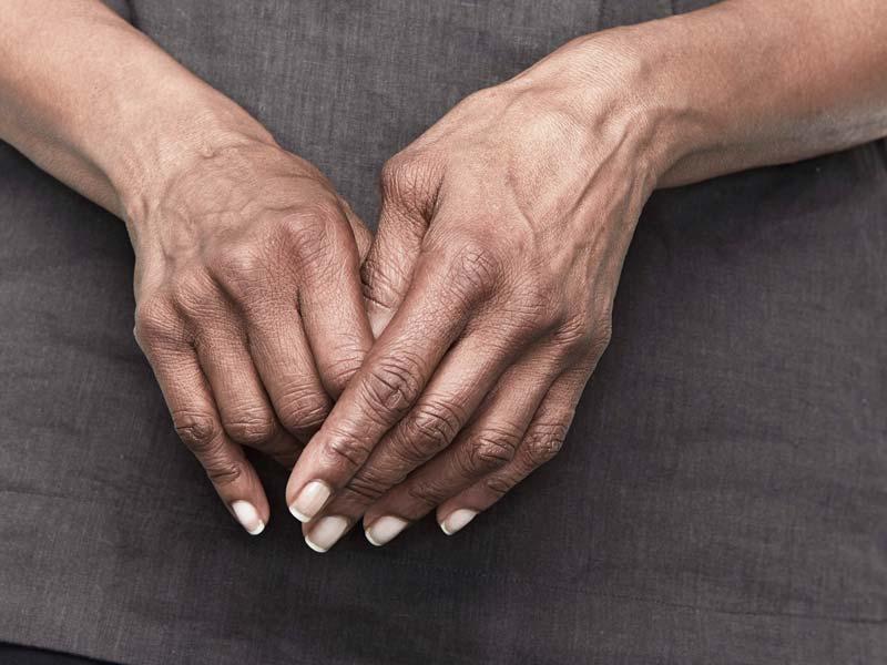 tepalas nuo iš rankų sąnarių artrozės podagra amboss