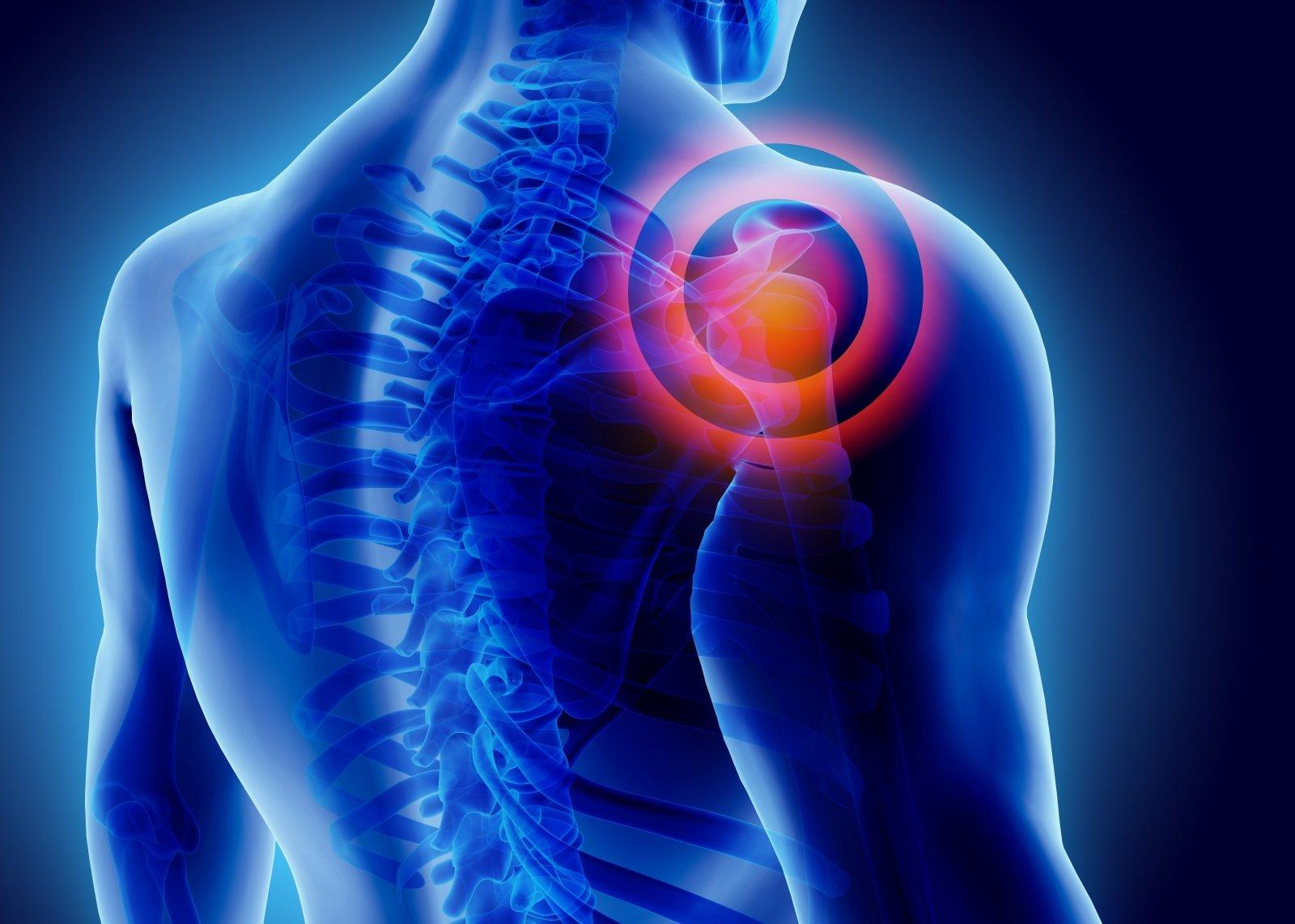 nugaros skausmai gulint