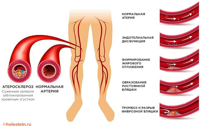 aterosklerozė sąnarių skausmo