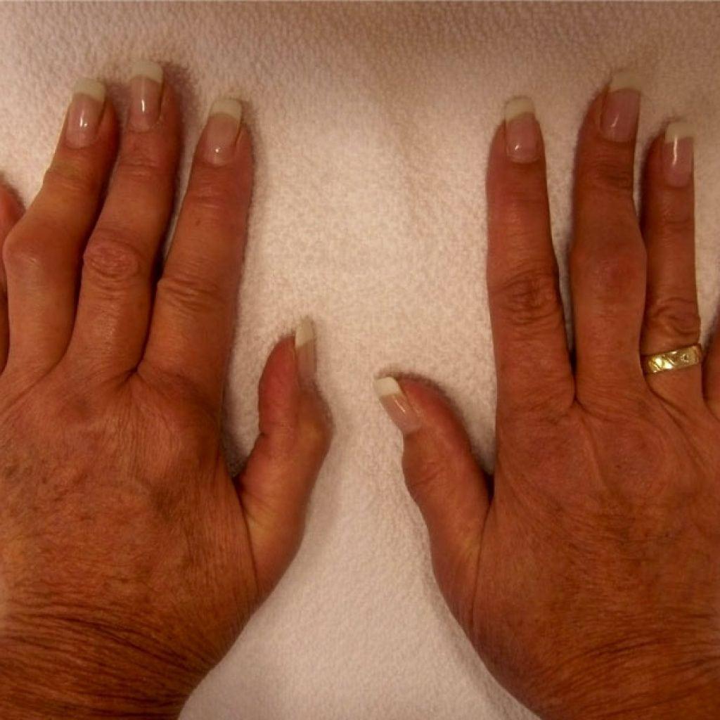 srautai iš iškarpos sąnarių gydymas sąnarių su agurkais