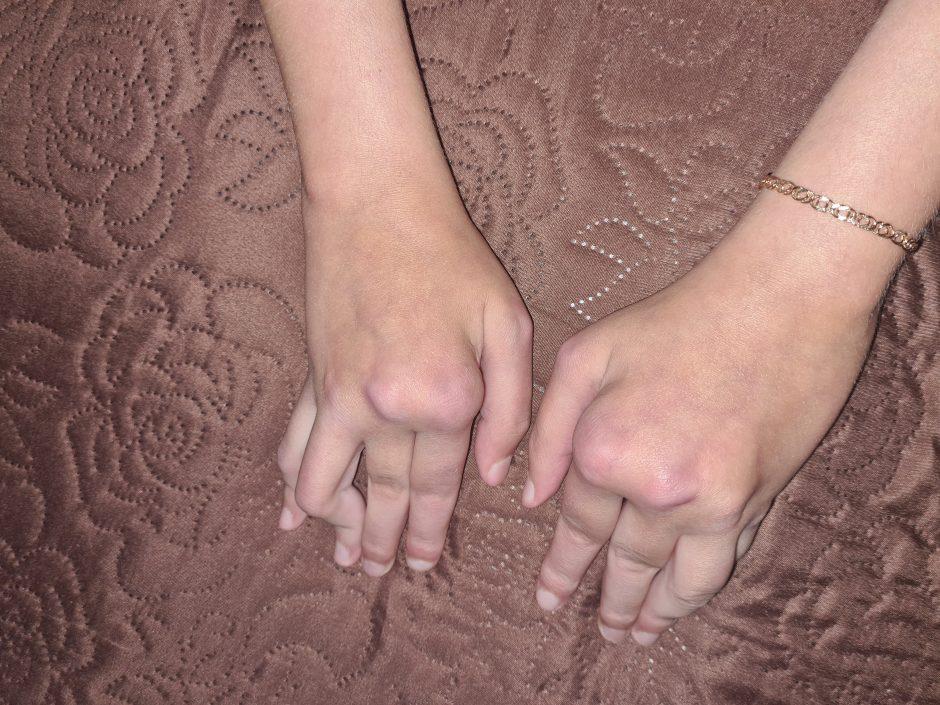 sąnarių kojų ir rankų kinesio juosta iš sąnarių skausmas