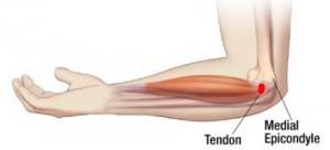 skausmo priežastis alkūnės sąnarių kaip pirštai atrodo kaip artritas