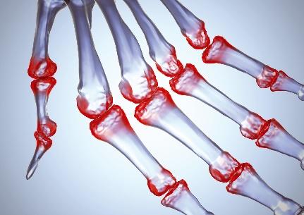 įrankiai iš artritu sąnarių