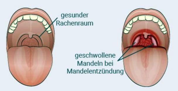 chondroitino kompleksas gliukozamino atsiliepimai