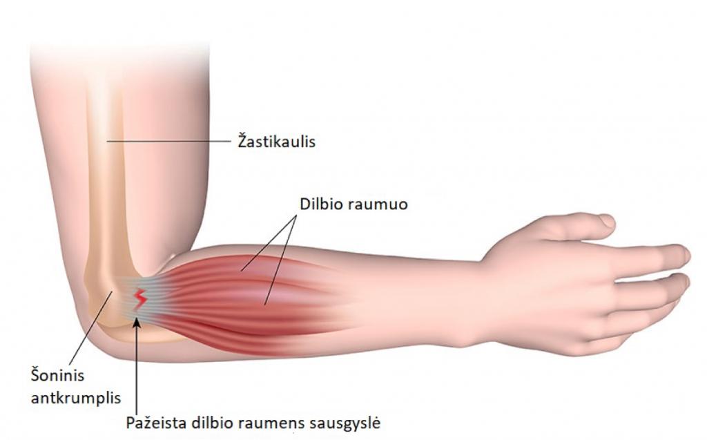 skausmo priežastis alkūnės sąnarių kelio sąnarių skausmas lankstant