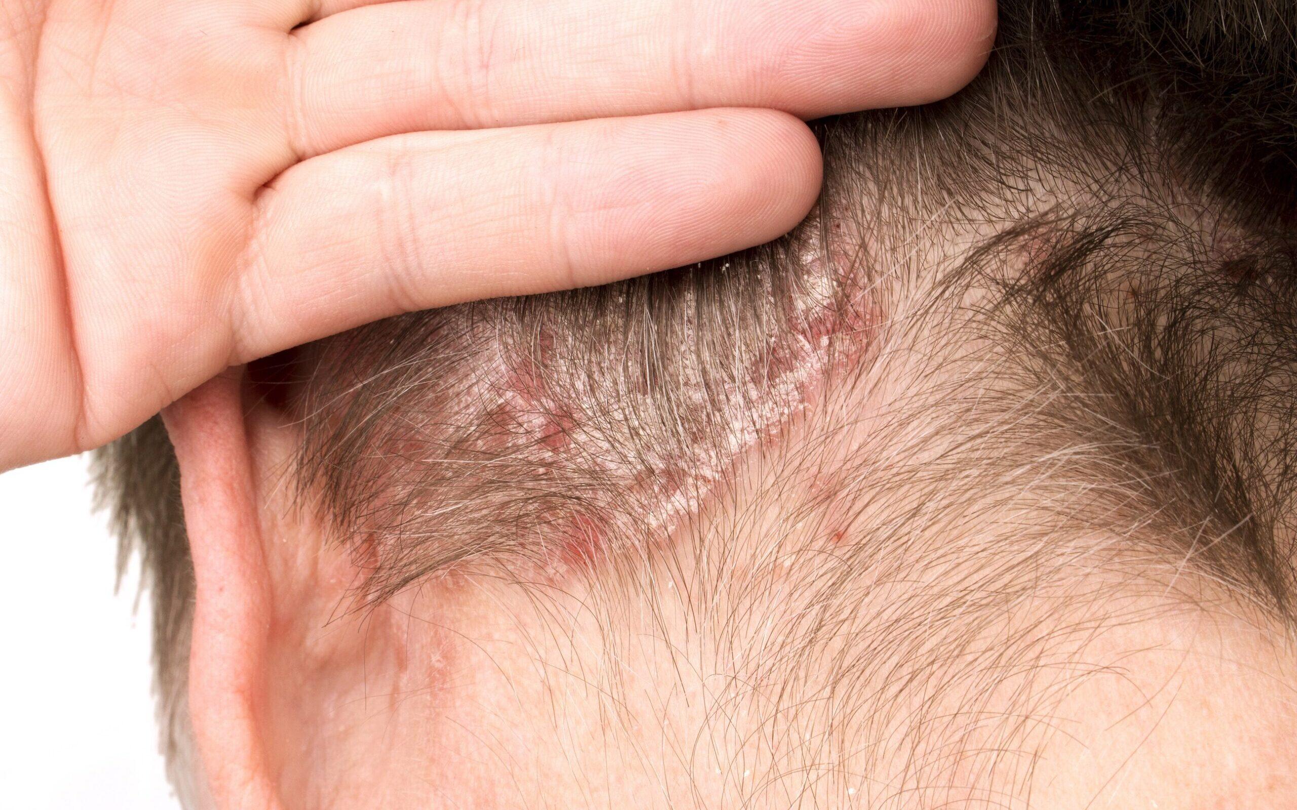 candida ir uždegimas sąnarių tabletės gydymas artrozės
