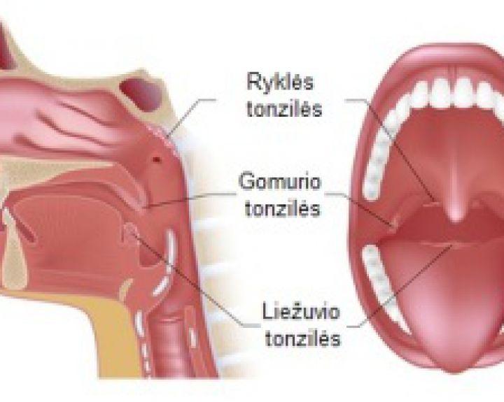 gerklės sąnarių ir raumenų vertus artritas ir artrozė jų gydymo