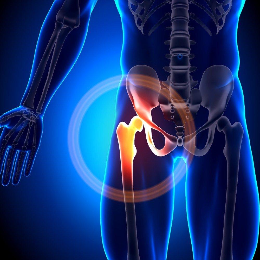 problema su škotų sąnarių plėtra alkūnės sąnario artrozė