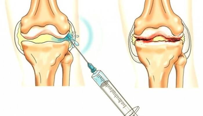 agentas osteoartrito peties sąnario gydymo pagrindiniai sąnarių rankų šepečiai gydymo