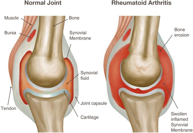 reumatoidinis artritas sąnarių žandikaulių