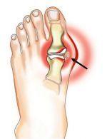 farmakoterapija sąnarių ligos artritas sąnarių heat