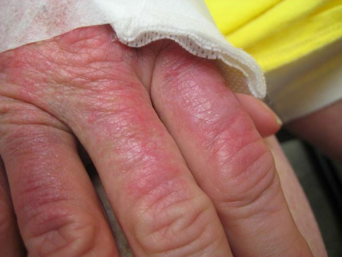 apie sąnarių skausmas liaudies gynimo skausmas peties sąnario rankų priežastis