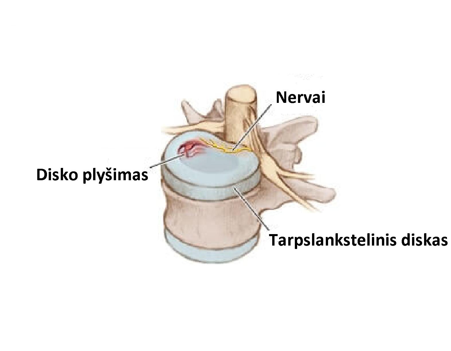 patinimas piršto sąnarių priežastis skausmas alkūnės sąnario tricepsas