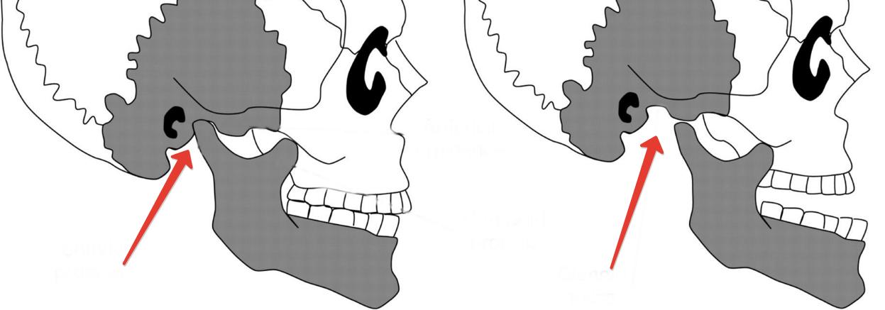 skauda sąnarių žandikauliai ką daryti skauda kairėje pusėje po šonkauliais