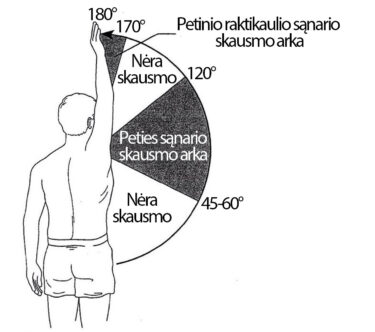 gydymo schema artrozė atsiliepimai gydymas sąnarių ir raiščių po sužeidimo