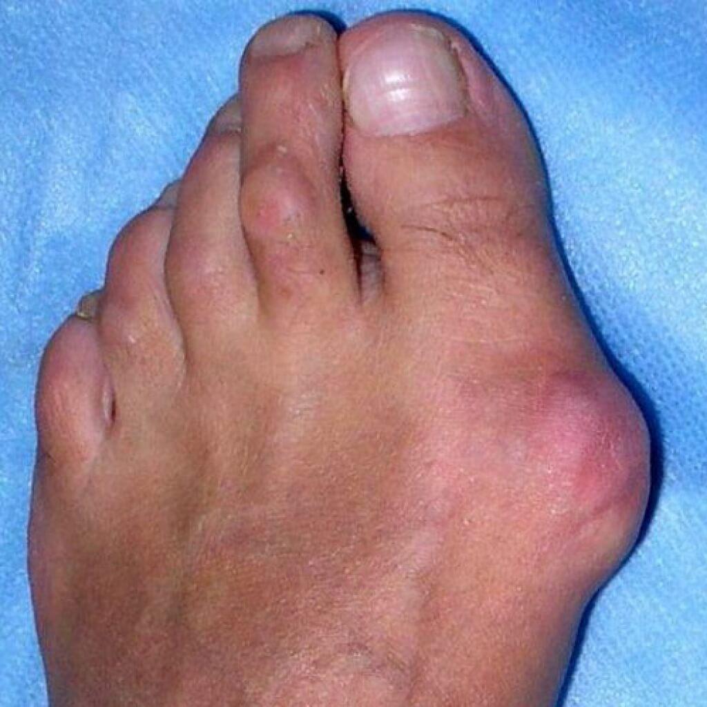kūgis ant pėdų gydymui sąnarių šalinama patinimas sąnario