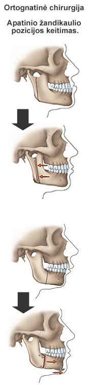 dulkių apatinio žandikaulio artrito