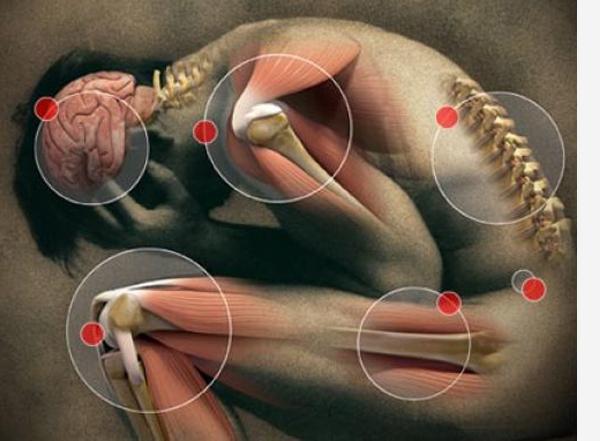 farmakoterapija sąnarių ligos skausmas alkūnės sąnario išorėje