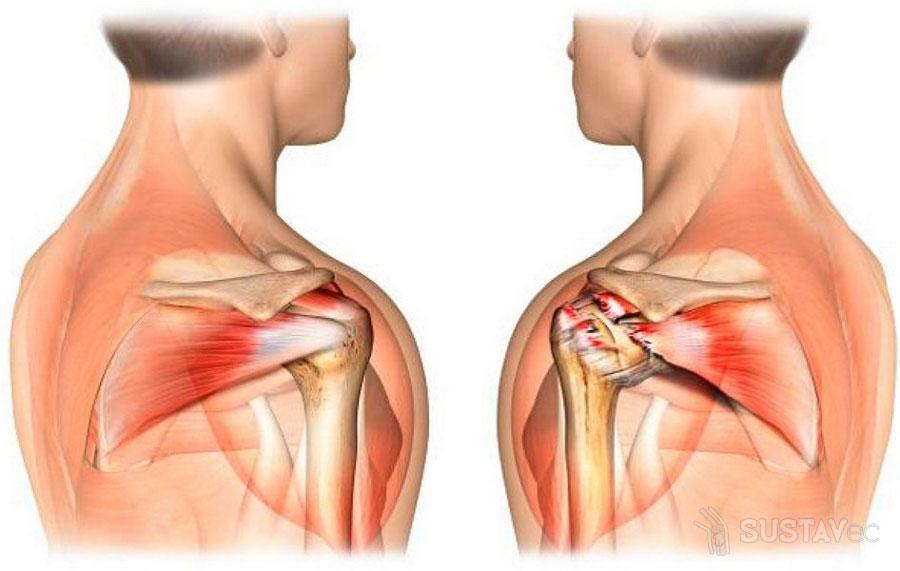 gydymas artrozė badas