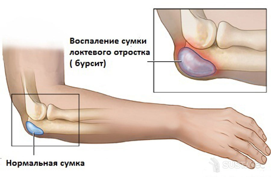 gerklės alkūnės sąnarių abiem rankomis artritas iš šepetėliai rankų sąnarių