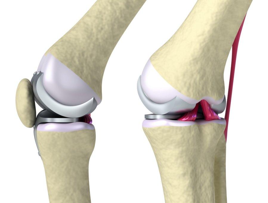 skauda skrandį ir sąnarių lomit gydymas osteoartrito kulno