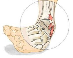 gydymas alkūnės artrozės