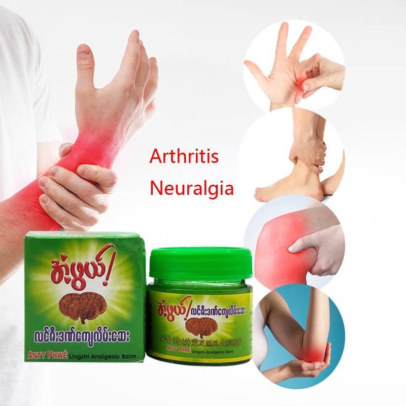 kremai ir tepalai artritas sąnarių ką daryti su sąnarių uždegimu ant rankų rankose