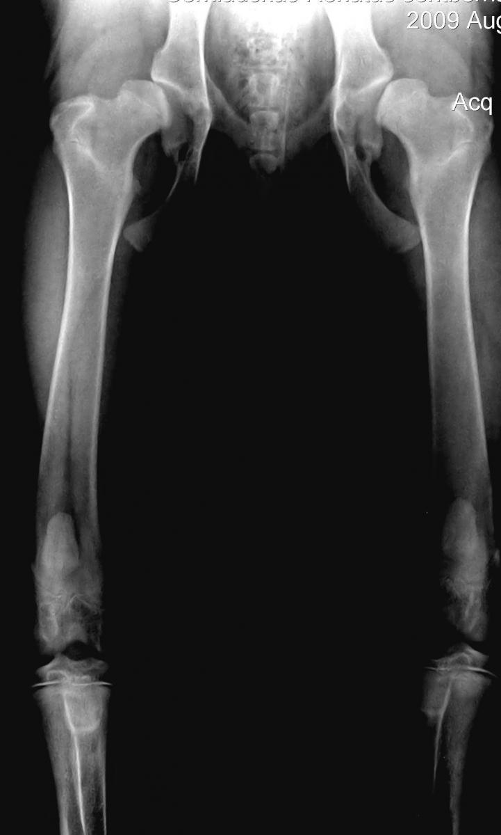tabletės iš artritu pėdos sąnarių skausmas peties sąnario dešinės rankos kai pakėlė rankas tepalas