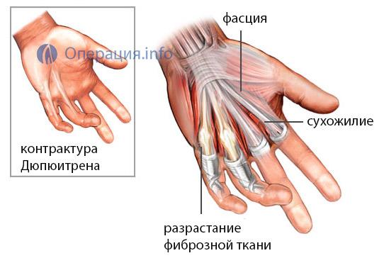 atsikratyti osteochondrozės liaudies gynimo priemones kaip pašalinti pėdos patinimas