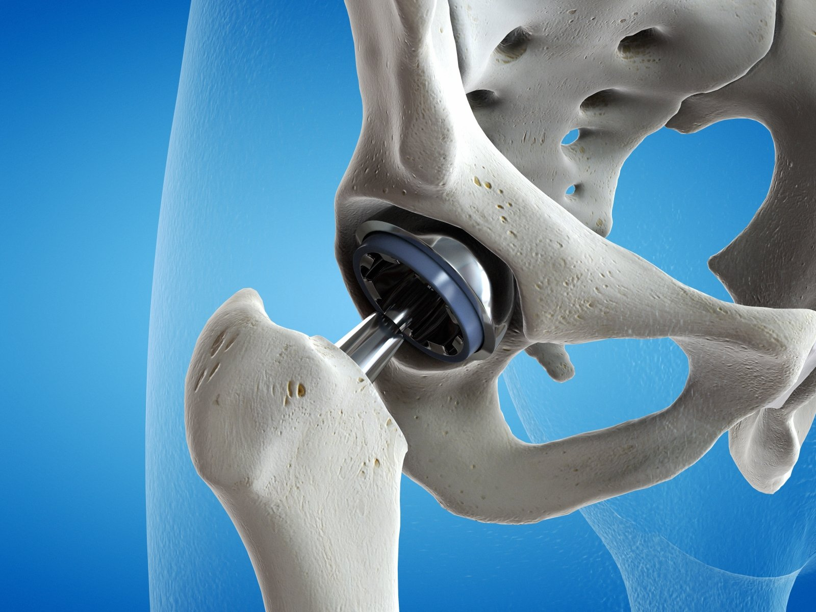 šlapias gelis sąnarių kinesiotapes iš skausmas sąnariuose ir raumenyse