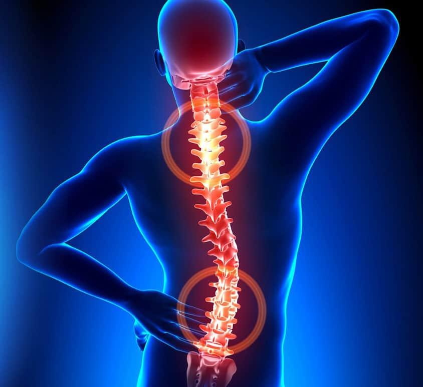 kosta artrozė ir gydymas kaip ištiesinti savo rankas nuo artrito
