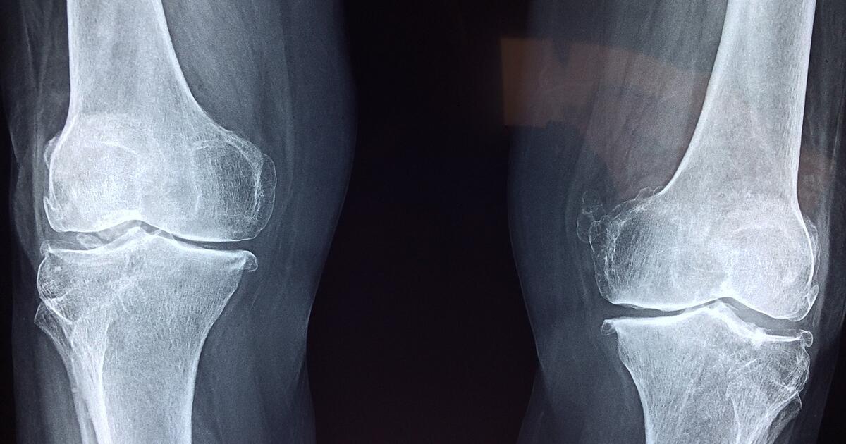 gelis atkurti sąnarių artritas artrito mažų pėdų sąnarių