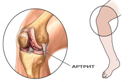 pašildyti sąnarių artritu