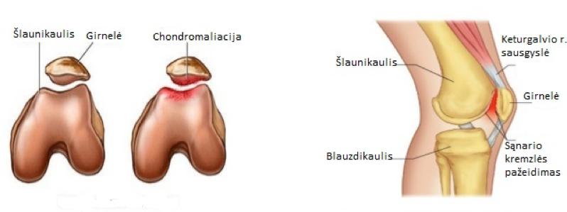 priežastys ir skausmui malšinti esantys peties sąnario šlaunies kaklo ir bendra skauda