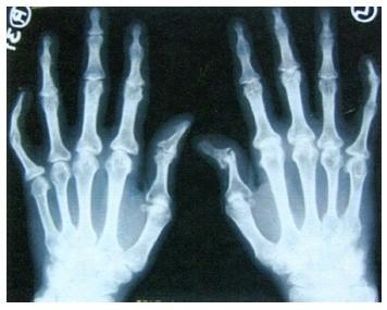 pirminė prevencija sąnarių ligomis gydymas skausmai ranka