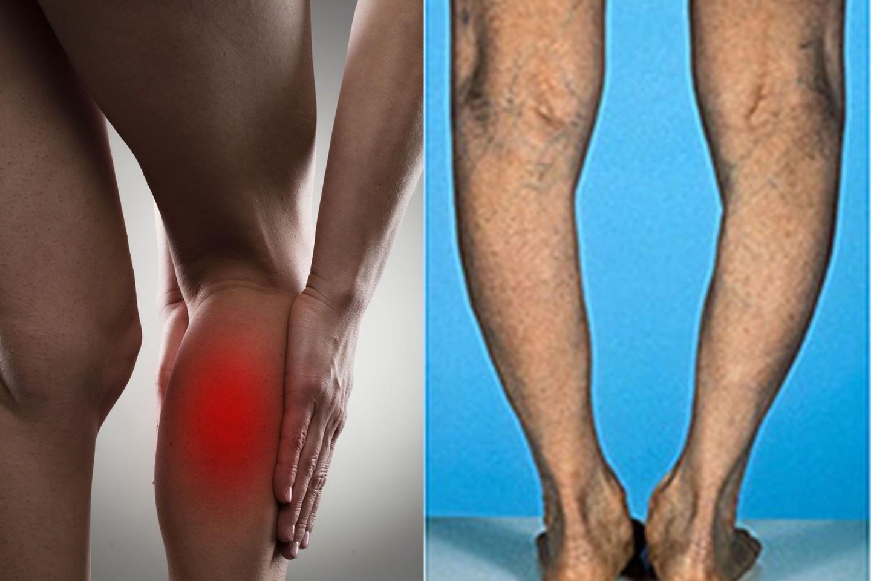 požymiai sąnarių uždegimas metodai gydant sąnarių ant kojų