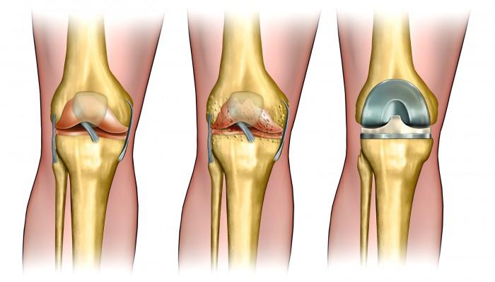 prevencija osteoartrito periferinių sąnarių liaudies gydymas iš skausmas pirštų sąnarių