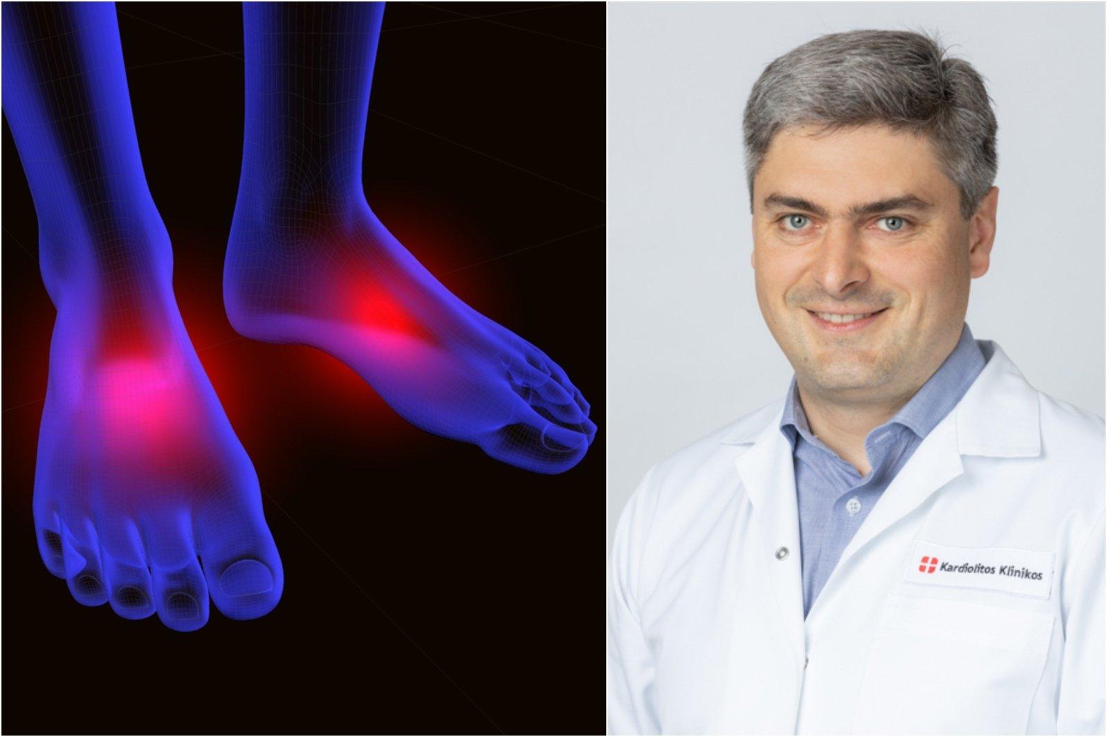 spinduliuotės gydymas sąnarių artritas piršto rankos priežastis gydymas