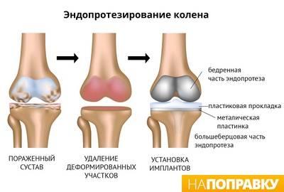 įrankiai stiprinti kremzlių ir sąnarių gydymas arthroz bursit