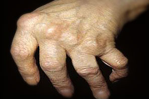 reumatoidinio artrito šlaunikaulio sąnarių milt f gydymas sąnariams