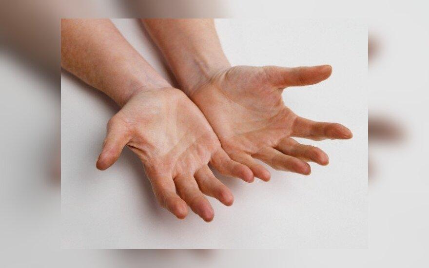 standartai gydant sąnarių ligos jei skauda sąnarius rankas kaip padėti
