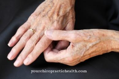 sukelia skausmą rankoje sąnarių