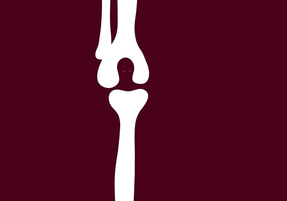 tai kas yra reumatoidinis artritas sąnarių artrozė gydymas pradiniuose etapuose
