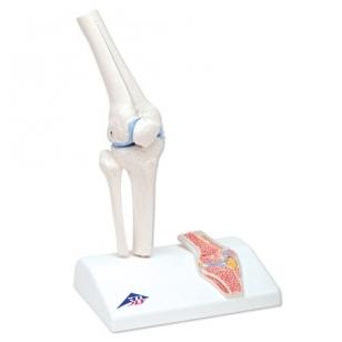 metodai artrozė žandikaulių gydymo gydymas sąnarių ir raiščių po sužeidimo