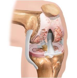 kelio sąnarių skausmas gliukozaminas ir chondroitino gydymas sąnariams